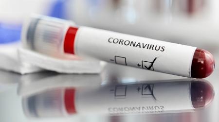 Coronavirus Calabria, oggi nove nuovi positivi Il bollettino quotidiano regionale